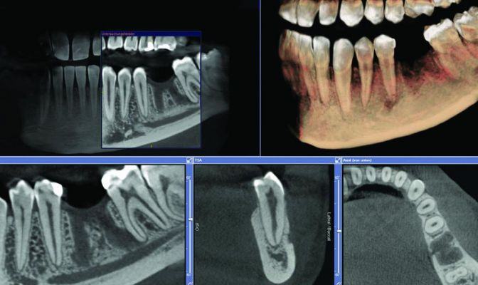 Click to enlarge image tac-denti.jpg