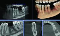 tac-denti.jpg