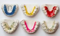 ortodonzia-1.jpg