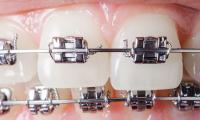 ortodonzia-3.jpg